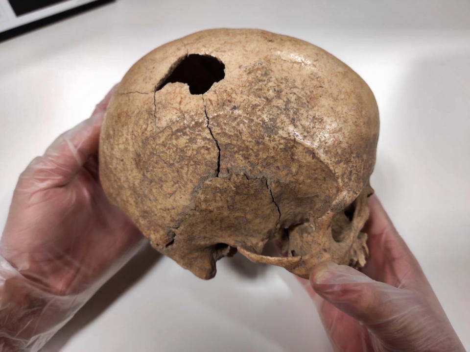 The skull with the injury in the head. Source: Real Press/Australscope