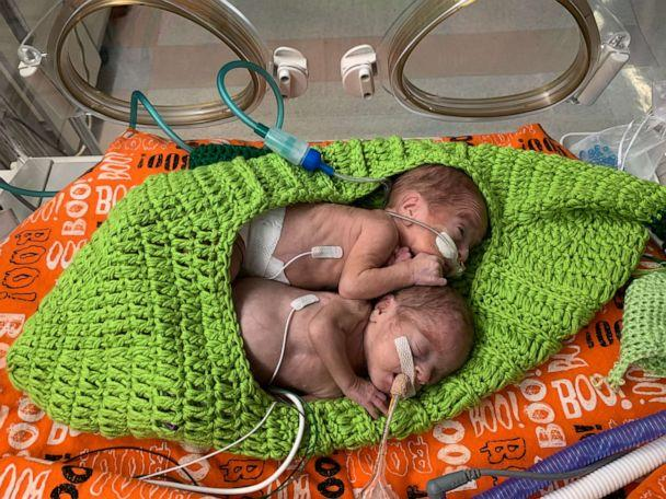 PHOTO: This pair of peas in a pod is a cuteness overload. (Advocate Children's Hospital)