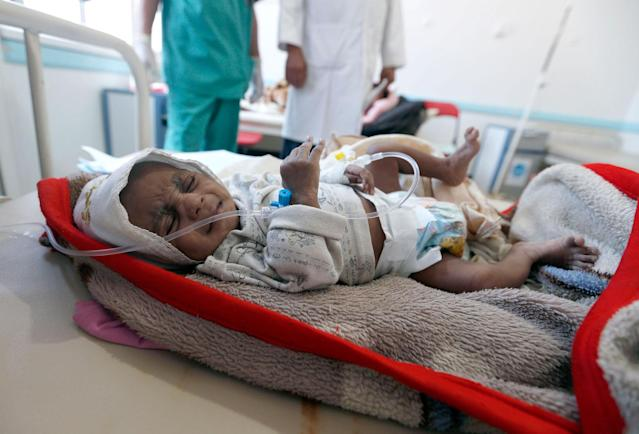 "<p>A Yemeni child suspected of being infected with cholera receives treatment at a hospital in Sana'a on May 25, 2017.<br> Cholera has killed 315 people in Yemen in under a month, the World Health Organization has said, as another aid organisation warned Monday the outbreak could become a ""full-blown epidemic"". (AFP/Getty Images) </p>"