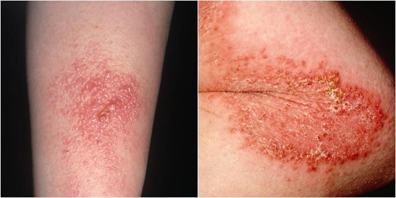 how to get rid of poison ivy itch