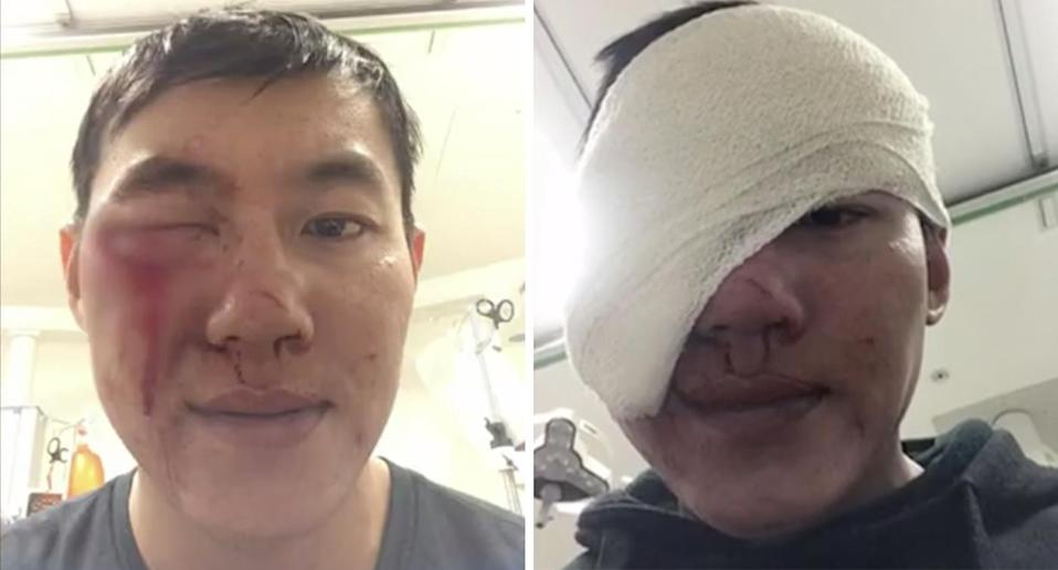 Uber Eats driver Ivan Jonatahir was bashed by a teenage gang in an unprovoked attack while delivering food in Perth. Source: 7 News