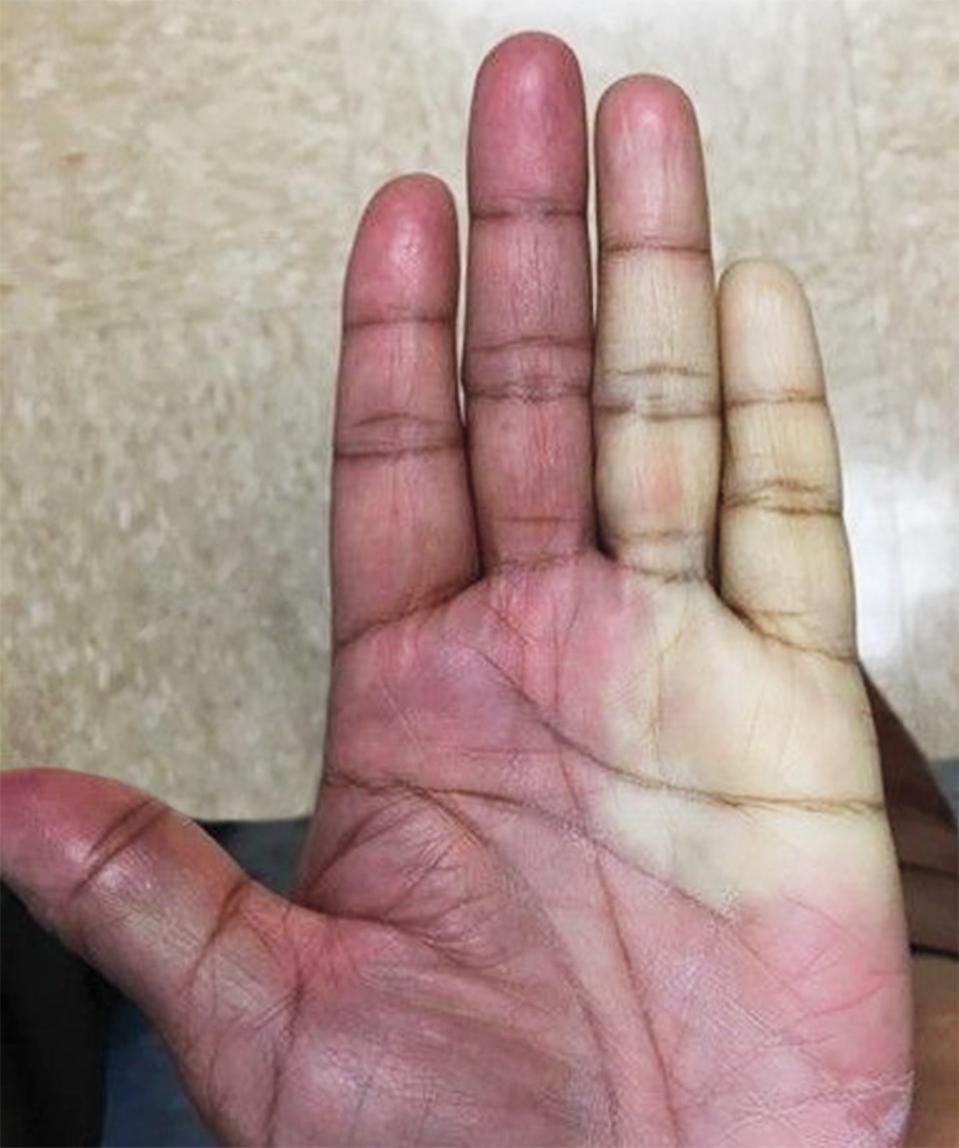 The hand of a woman treated for carpal tunnel syndrome after receiving an injection. Her hand has changed colour.