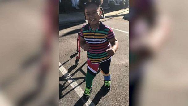 PHOTO: Shanell Jones, of Fayetteville, North Carolina, shared footage of 4-year-old Kinley's progress in taking her first steps. Kinley was diagnosed with cerebral palsy at the age of 2. (Shanell Jones)