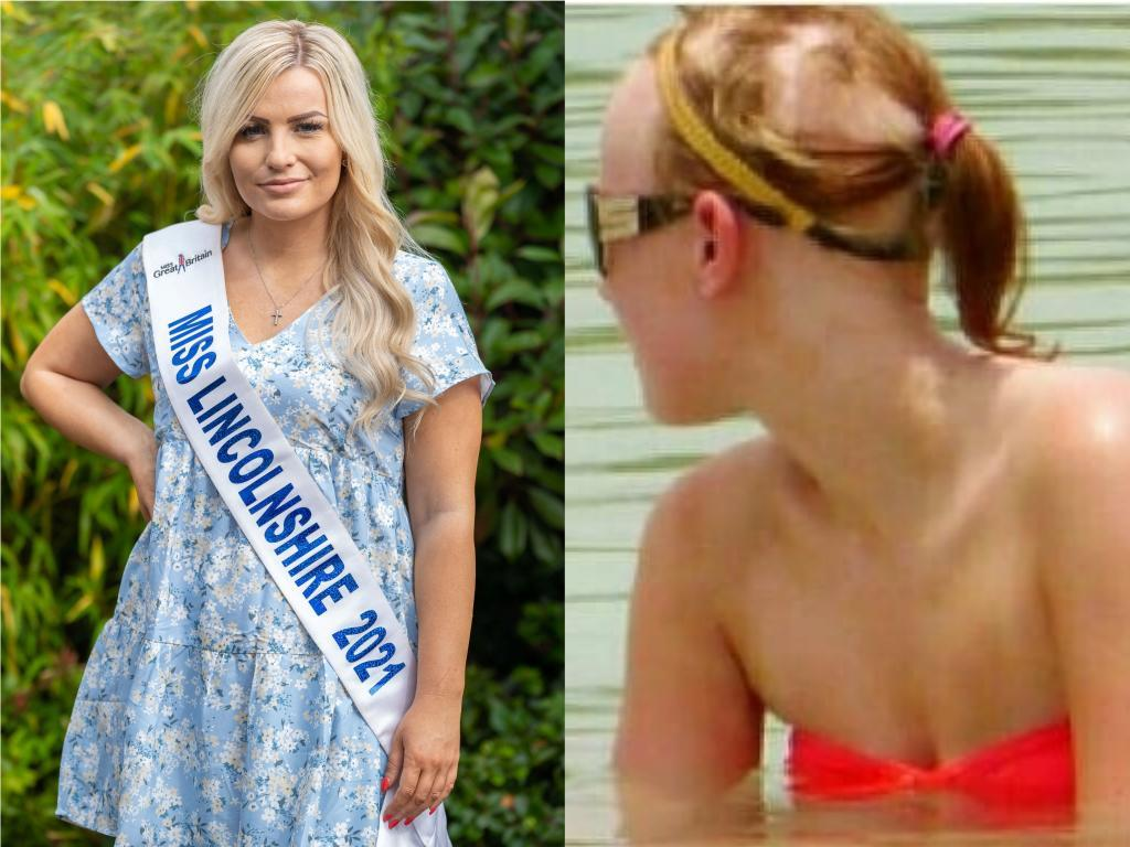 Chloe Ashford-Smith has suffered from alopecia since childhood and is now hoping to win Miss GB. (SWNS)