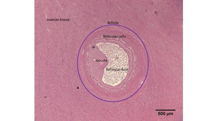 A mass of white tissue (the follicle) within the surrounding pink ovarian tissue.