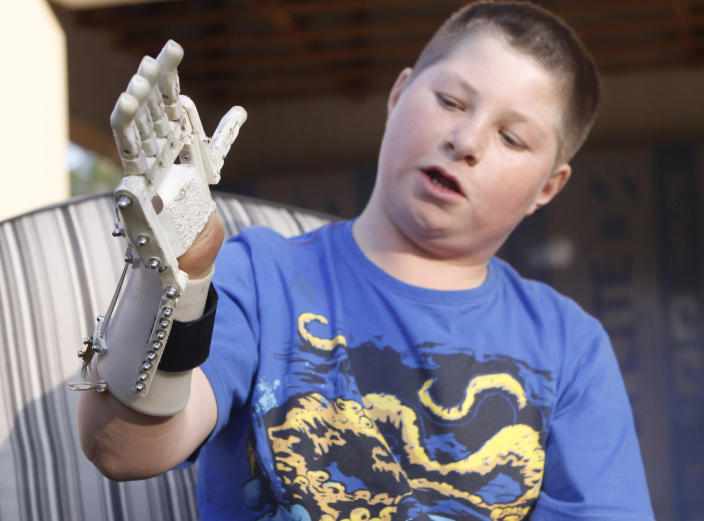 In this photo taken Friday, Aug. 23, 2013 Dylan Laas shows how his Robohand works during an interview with the Associated Press in Johannesburg. Laas who was born with Amniotic Band Syndrome, got his hand from carpenter, Richard van As who lost four fingers to a circular saw two years ago and started workin on building the Robohand after seeing a video posted online of a mechanical hand made for a costume in a theater production. Since then van As has fitted Robohands on about 170 people, from toddlers to adults. (AP Photo/Denis Farrell)