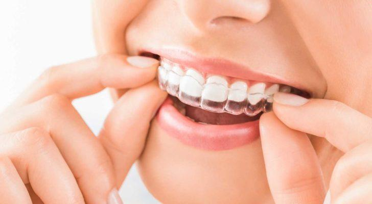 image of woman receiving a clear retainer