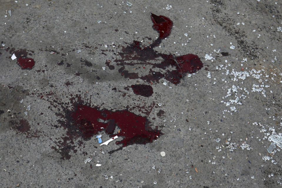 Shards of glass from a car and blood are seen on the pavement after multiple rocket system shelling by Armenian forces in Barda, Azerbaijan, Wednesday, Oct. 28, 2020. The Azerbaijani Defense Ministry rejected all the accusations and in turn accused Armenian forces of using the Smerch multiple rocket system to fire at the Azerbaijani towns of Terter and Barda. The strike on Barda killed more than 20 people and wounded 60, Azerbaijani officials said. (AP Photo/Aziz Karimov)