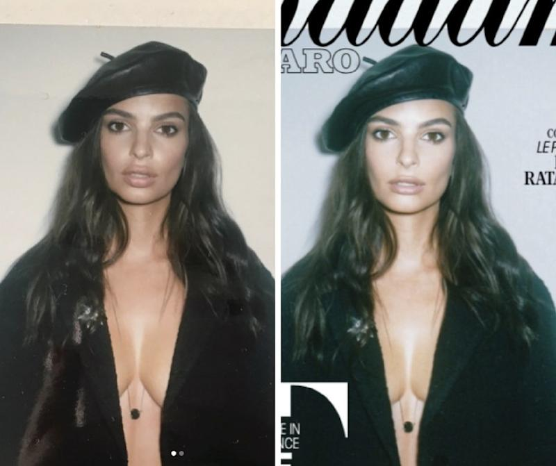 Emily Ratajkowski shared the before photo on the left. The photo on the right is after alterations were made. (Emily Ratajkowski/Instagram)