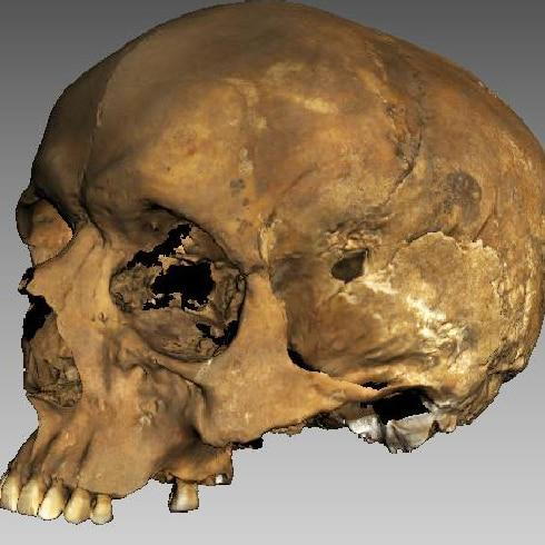 The skull showed a serious head injury which had healed  - Credit: University of Sheffield