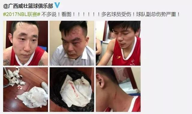 Members of the Guangxi Rhinos were photographed following the melee.