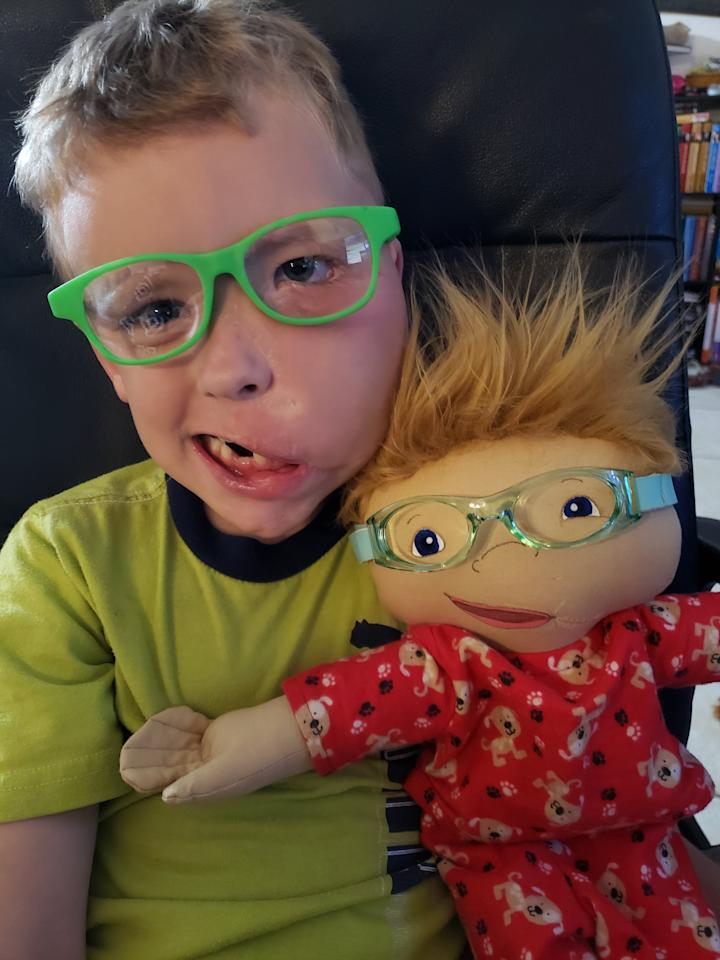 """Zachariah Hayes was born with a rare genetic disorder called Facial Infiltrating Lipomatosis, which affects the size of one half of his face.  When the 6-year-old received his doll in March, mom Chelsey O'Halloran, 26, was overwhelmed. """"A good overwhelmed,"""" she says, """"to see he had something like him."""" As for Zachariah, """"he loves it, he thinks of it as himself."""""""