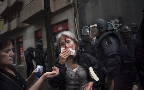 A woman tends to her injuries in front of riot police near a school being used as a polling station - Credit: Geraldine Hope Ghelli/Bloomberg
