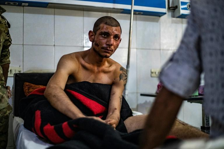 Fellow burns victim Irdal Walid, 19, says the only thing he can think about is returning to the front and fighting the Turkish army alongide his comrades (AFP Photo/DELIL SOULEIMAN)