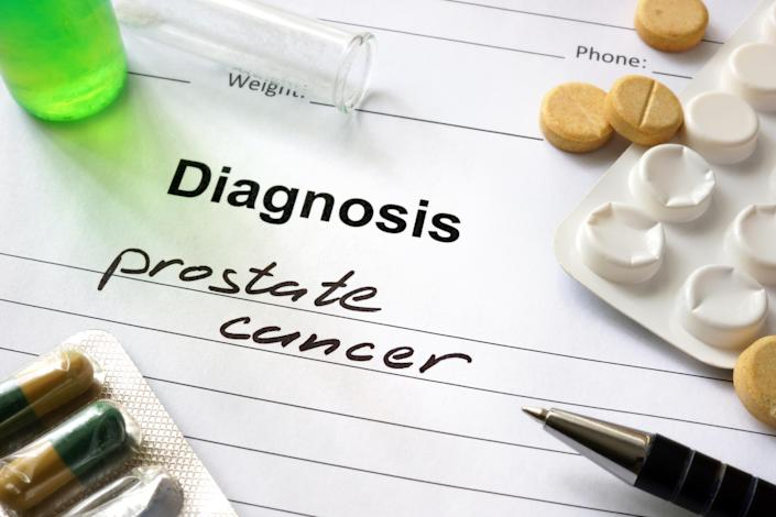 Prostate cancer is on the rise in the UK. [Photo: Getty]