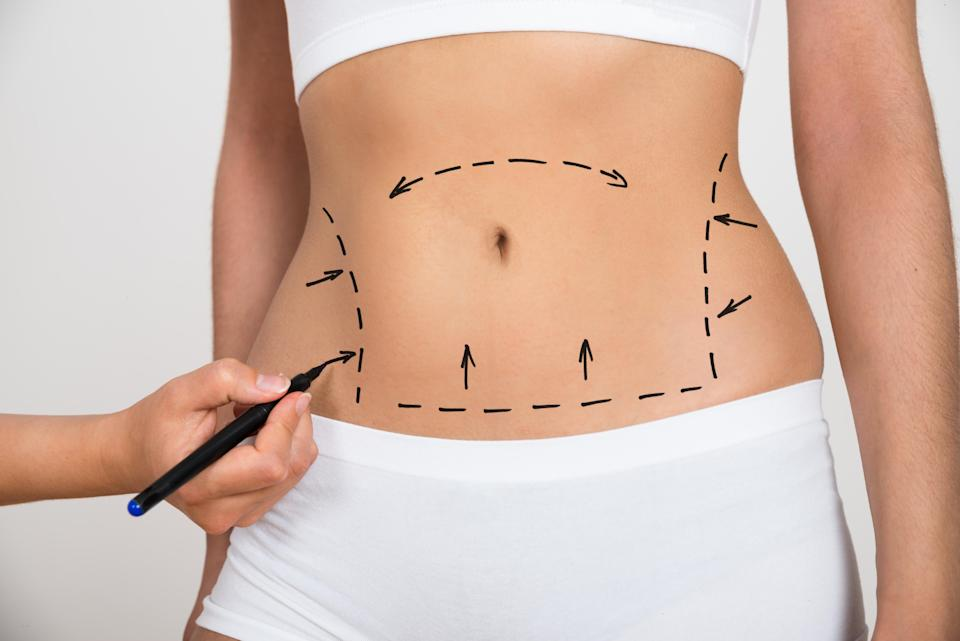 Women are getting surgery to change the shape and size of their belly buttons [Photo: Getty]