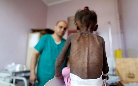 <span>A nurse weighs a malnourished girl at a treatment center in Sanaa, Yemen</span> <span>Credit: Reuters </span>