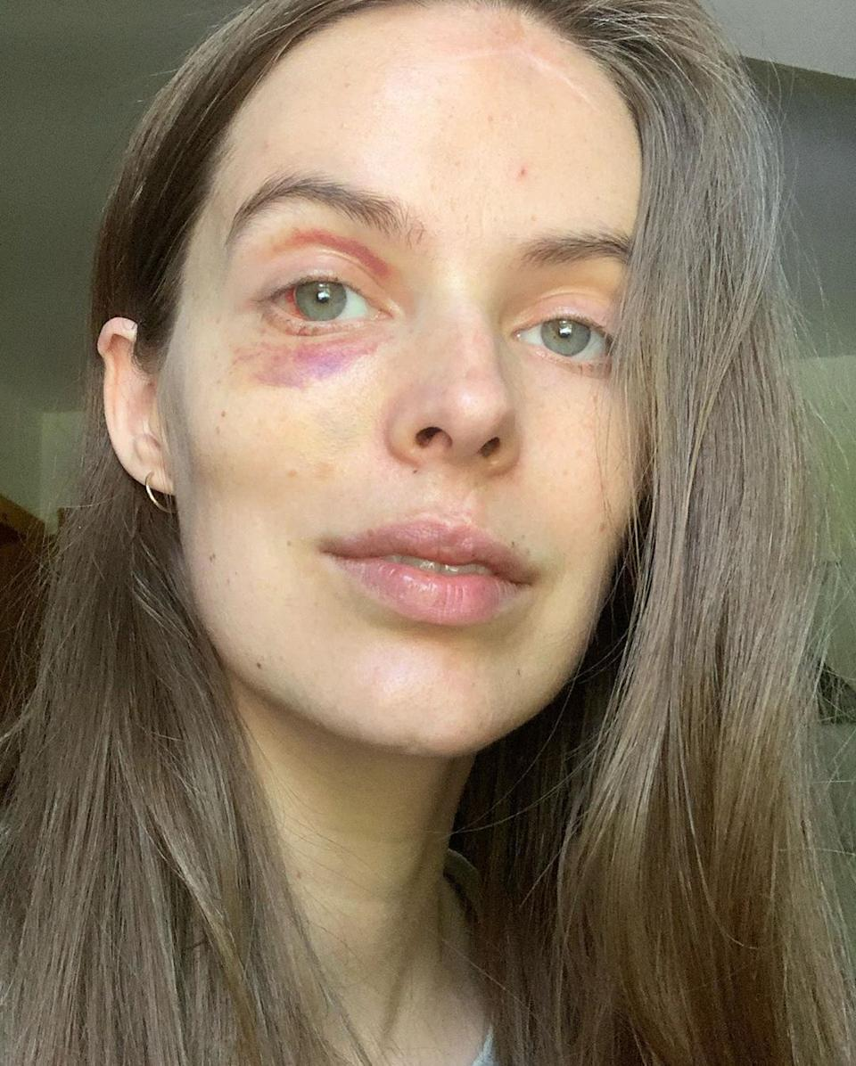 Robyn, who lives with the autoimmune condition lupus, shared another photo of her healing black eye. Photo: Instagram/robynlawley.