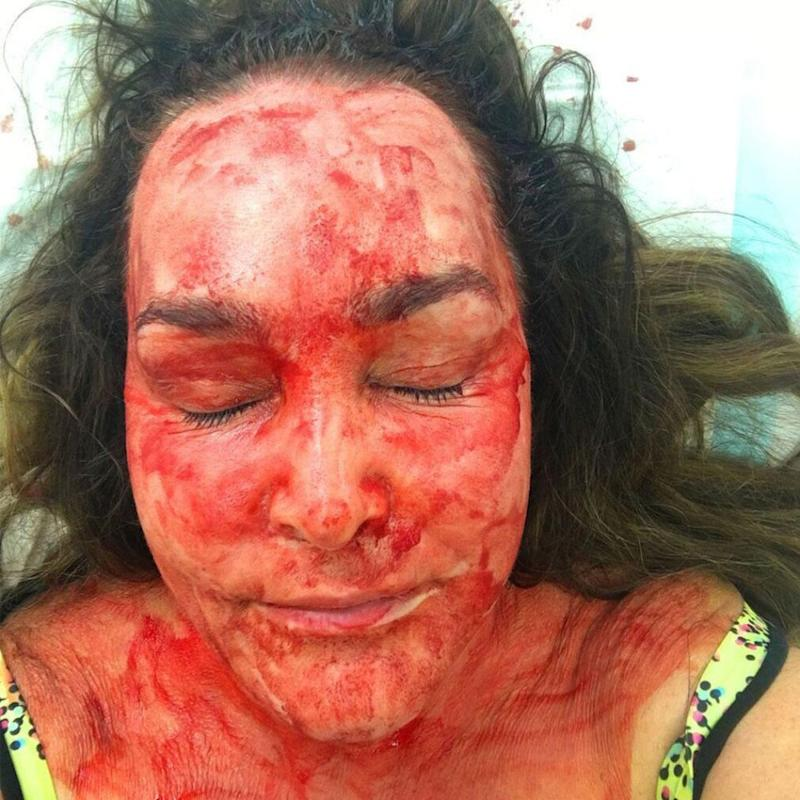The 51-year-old revealed she had around 20ml of blood extracted, before it was smothered across her face as part of the treatment. Source: KIIS FM