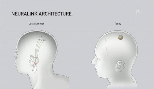 PHOTO: A illustration shows Neuralink disk implant at different stages of implantation during a livestream presentation on Aug. 28, 2020. (Neuralink)