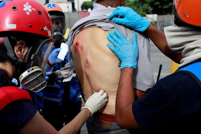 <p>A man receives help after being injured with rubber bullets at a rally during a strike called to protest against Venezuelan President Nicolas Maduro's government in Caracas, Venezuela, July 27, 2017. (Photo: Marco Bello/Reuters) </p>