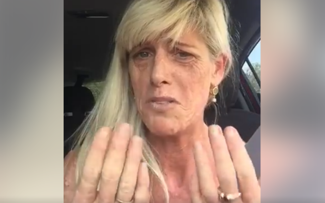 Jeniffer Brown posted a video to her Facebook shortly after she was denied a manicure due to her lupus scars. (Photo: Jeniffer Brown via Facebook)