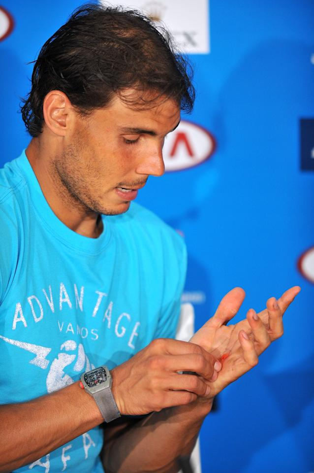MELBOURNE, AUSTRALIA - JANUARY 20: Rafael Nadal of Spain shows his blistered hand during a press conference after he won his fourth round match against Kei Nishikori of Japan during day eight of the 2014 Australian Open at Melbourne Park on January 20, 2014 in Melbourne, Australia. (Photo by Vince Caligiuri/Getty Images)