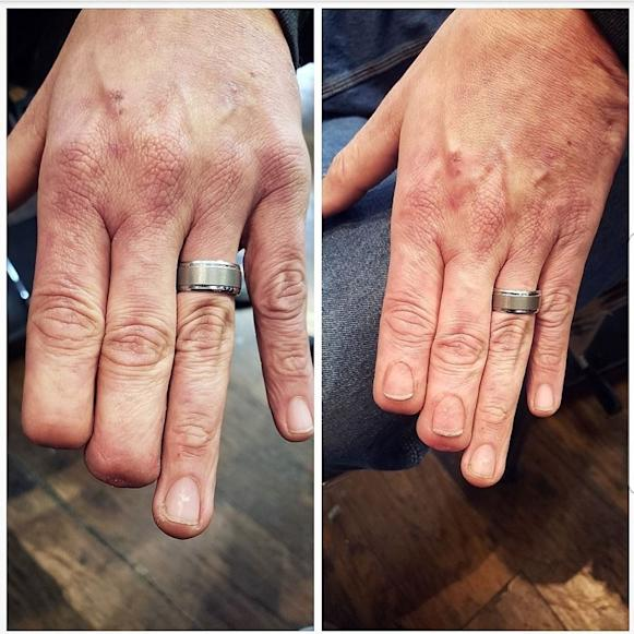 Mark Bertram lost the tips of two fingers in a construction accident last year. Bertram was trapped in a fan belt at work when the tips of his fingers were severed off. Eric Catalano tattooed fingernails for Bertram. (Courtesy of Eric Catalano)
