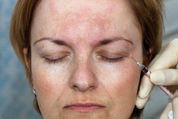 Botox and Fillers Are Very Safe, Study Suggests