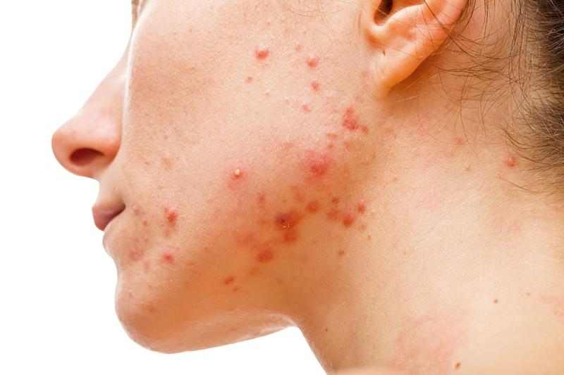 face with acne