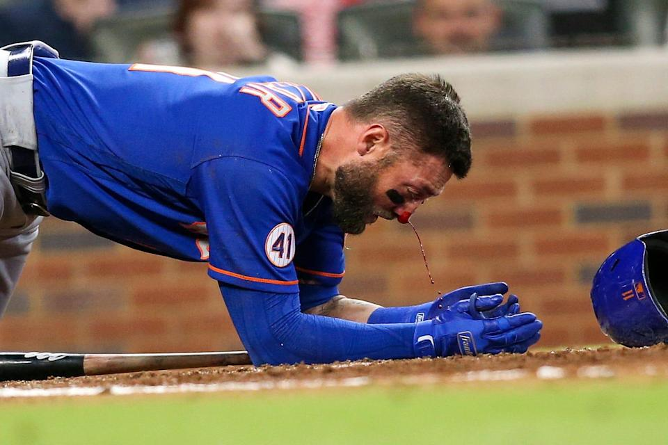 Kevin Pillar bleeds from the nose after being hit by a 94.5 mph pitch.