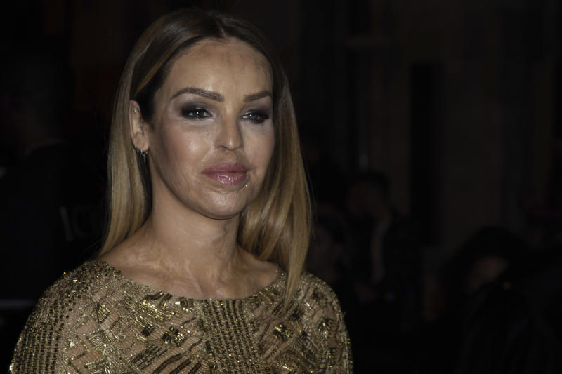 Katie Piper poses for photographers ahead of the Julien Macdonald Spring/Summer 2020 fashion week runway show in London, Monday, Sept. 16, 2019. (Photo by Vianney Le Caer/Invision/AP)