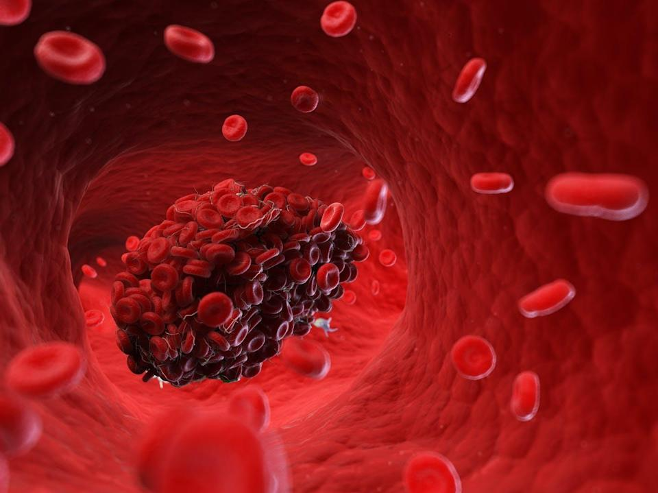 """<span class=""""attribution""""><a class=""""link rapid-noclick-resp"""" href=""""https://www.shutterstock.com/es/image-illustration/3d-rendered-medically-accurate-illustration-blood-1081586696"""" rel=""""nofollow noopener"""" target=""""_blank"""" data-ylk=""""slk:Shutterstock / SciePro"""">Shutterstock / SciePro</a></span>"""