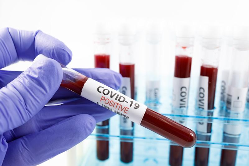 (PHOTO: COVID-19 positive test result/Getty Images)