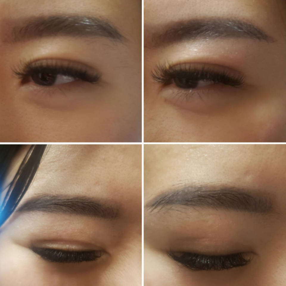 When you risk pinching your skin with a pair of tweezers, you'll wish you had Vogcrest's Rechargeable Eyebrow Trimmer & Facial Hair Remover. These before and after photos show just how effective it is.