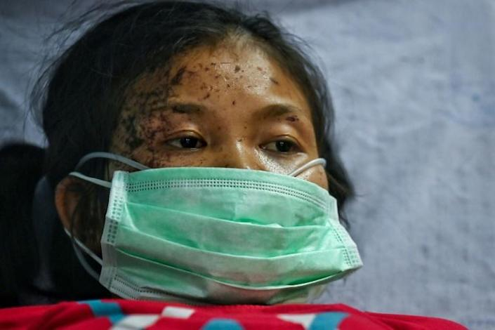 Civilians walked through dense jungle and crossed into neighbouring Thailand for medical treatment following air strikes