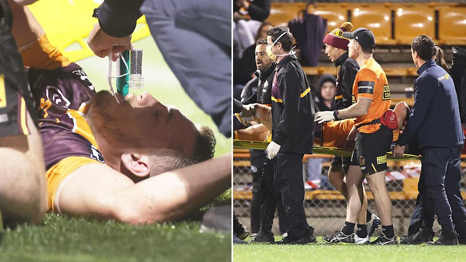 Seen here, Corey Oates is taken from the field after suffering a leg fracture.
