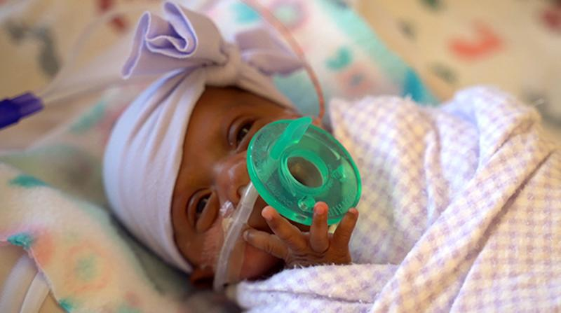 World's smallest surviving premature baby, weighing just 245g, born in the US