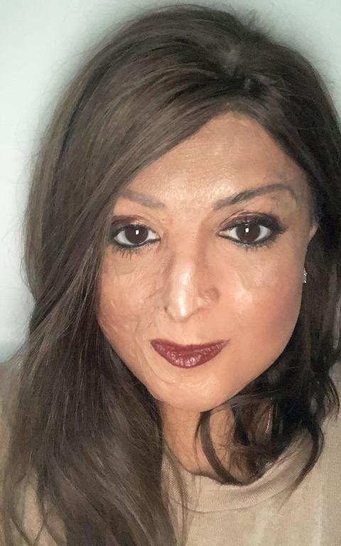 Tulsi Vagjiani, 39, a Pilates instructor and crystal merchant, was 10 years old when she was in a plane crash, in which she lost her immediate family. She sustained second-andthird-degree burns to 45 per cent of her face and body.