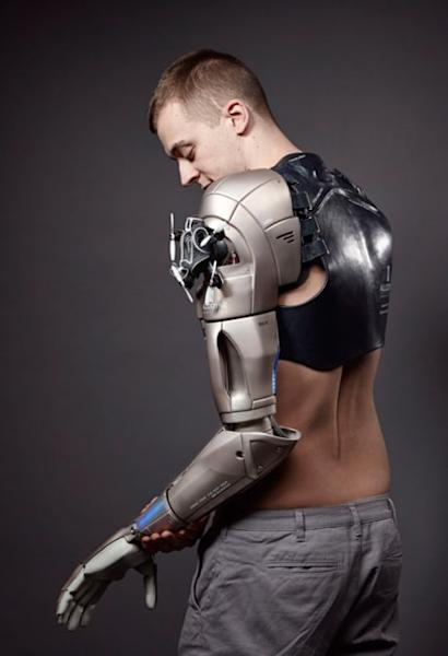 A Bionic Arm That Pushes The Boundaries Of Imagination