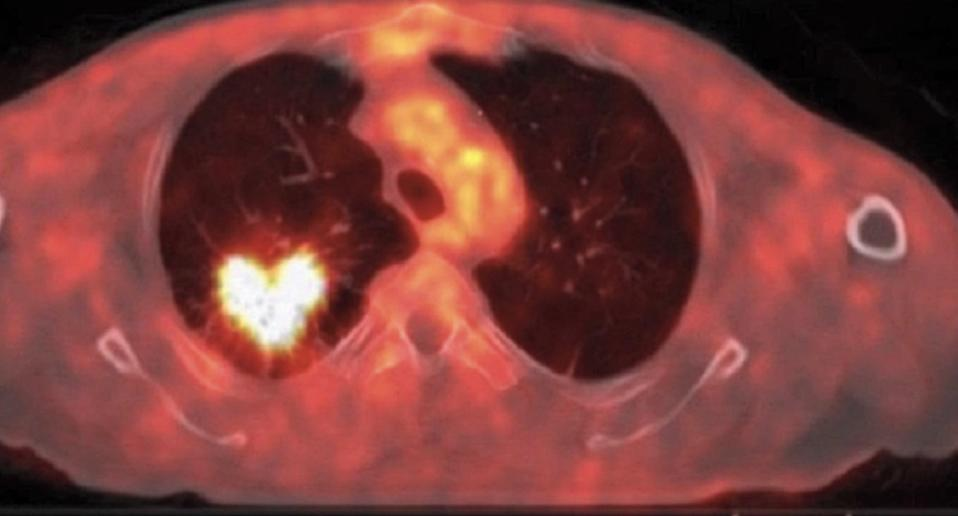 A heart-shaped lesion seen on a man's lung during a CT scan.