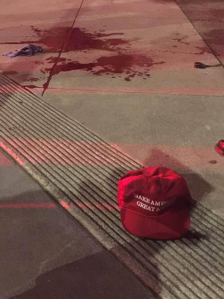 A man wearing a MAGA allegedly shouted homophobic slurs at people on the street and slashed the hand of a man. (Photo: Facebook/David Miles)