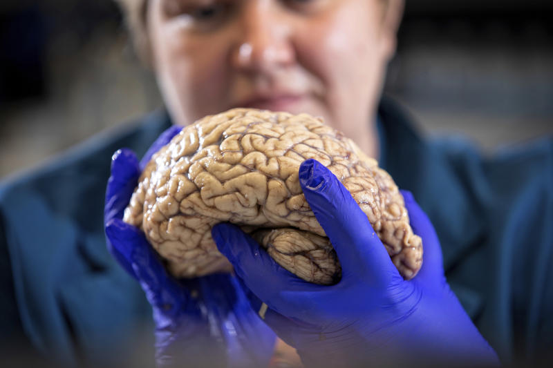 "In this Aug. 14, 2019 photo provided by the University of Kentucky, Donna Wilcock, of the Sanders-Brown Center on Aging, holds a brain in her lab in Lexington, Ky. She says that contrary to popular perception, ""there are a lot of changes that happen in the aging brain that lead to dementia in addition to plaques and tangles."" (Mark Cornelison/University of Kentucky via AP)"