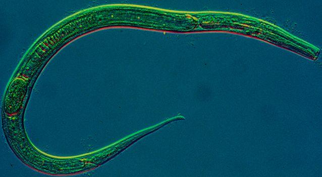 Expert David Morgan said the parasites are probably roundworms or nematodes (pictured). Source: AAP / Stock image