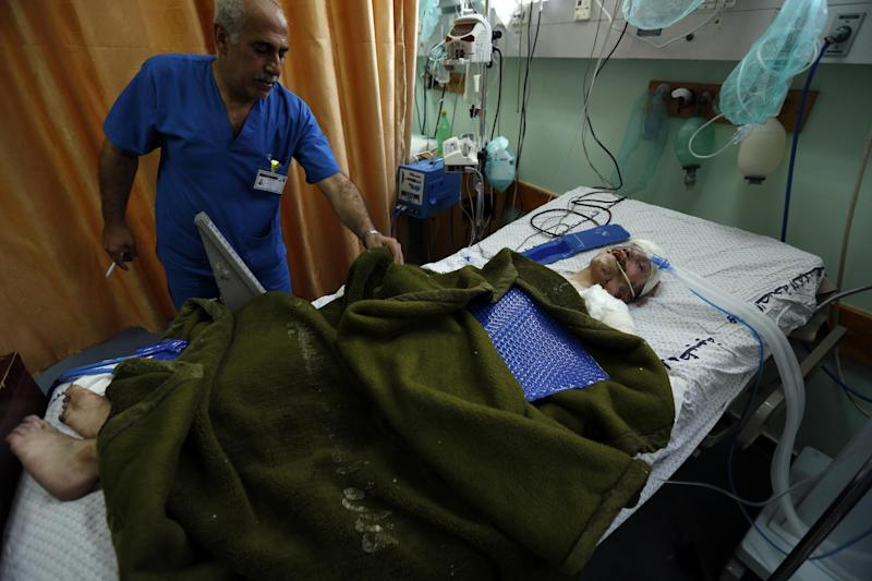 A hospital attendant checks on Ahmad Al-Awar, 28-years-old, from the Palestinian center for people with special needs as he lies on a bed in Gaza City on July 12, 2014 (AFP Photo/Mohammed Abed)