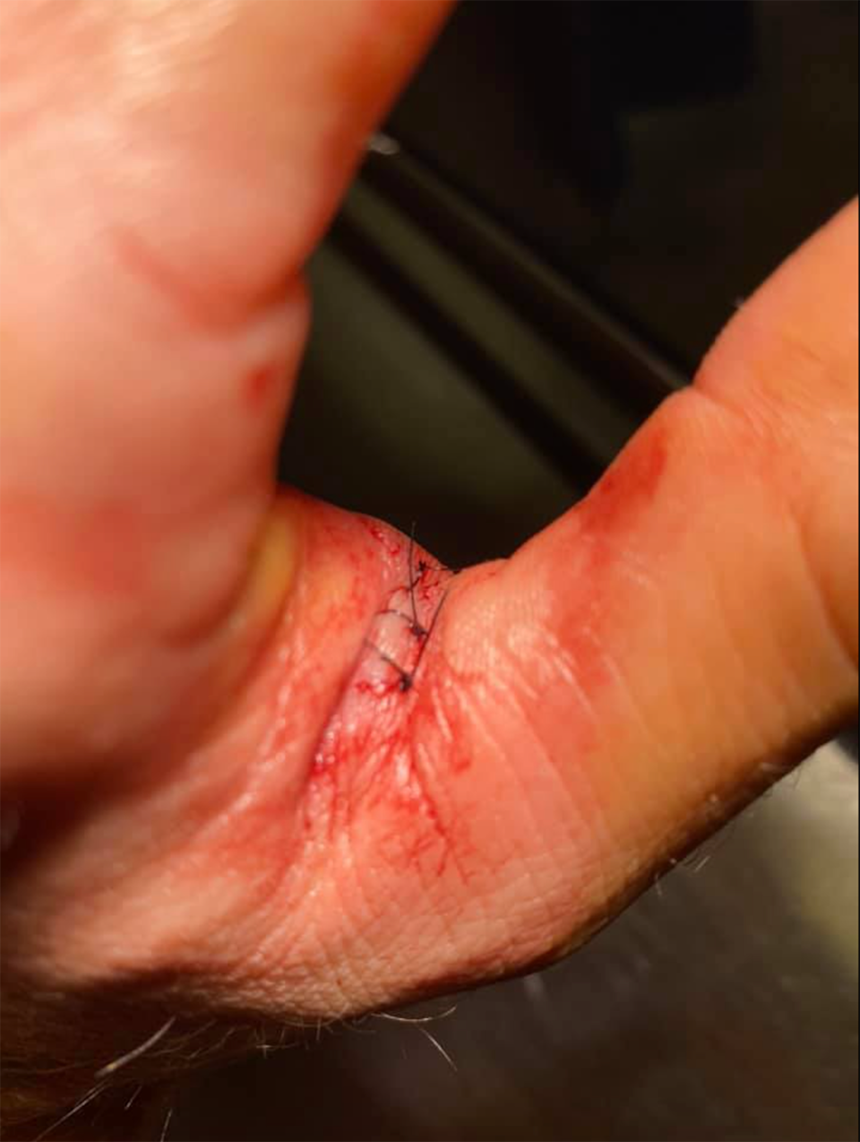 Stitches in the webbing of Dylan's hand.