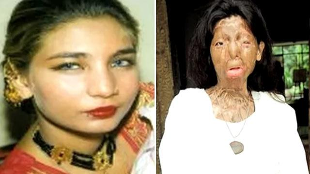 Acid Attack Victim Fakhra Yunus Commits Suicide (ABC News)