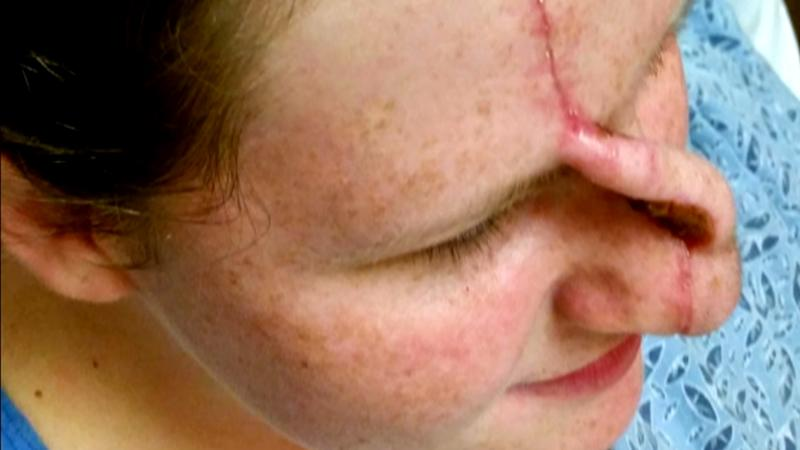 Skin Cancer Took Woman S Nose