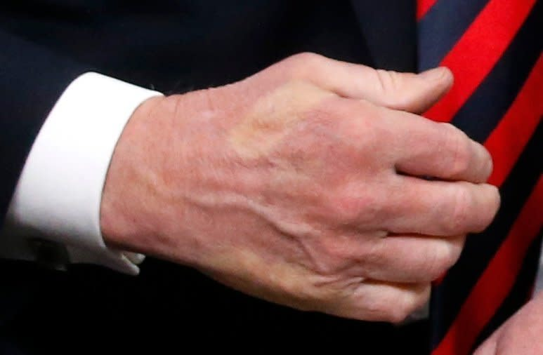 The imprint of Macron's thumb can be seen across the back of Trump's hand after they shook hands. (Leah Millis / Reuters)