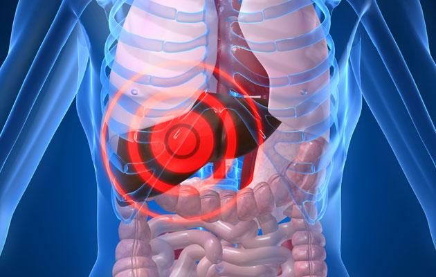 Colorectal Cancer Spread To Your Liver Surgery Holds Potential Cure